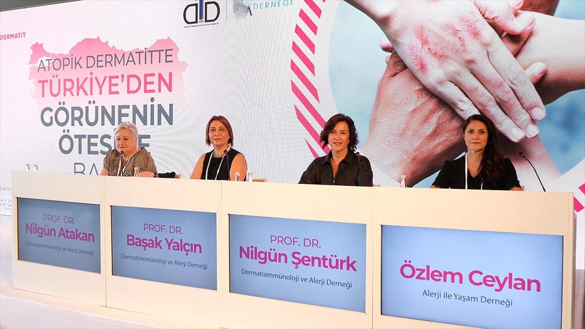 Türkiye'de ilk kez yapılan 'atopik dermatit' araştırmasının sonuçları paylaşıldı